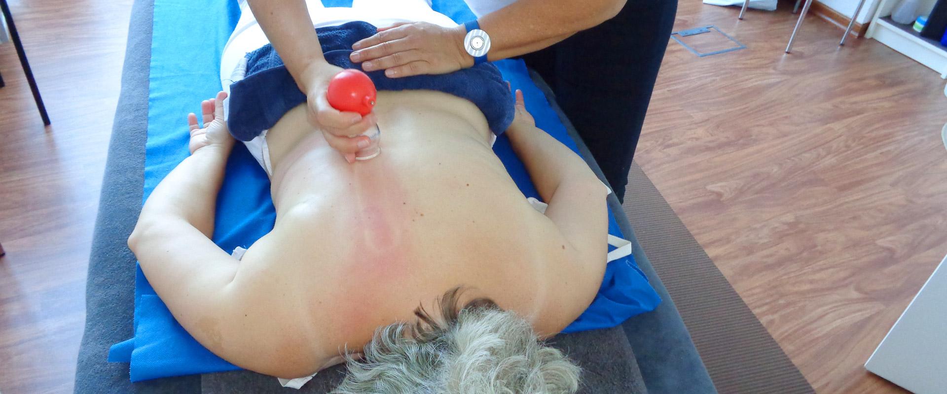 Massage und Wellness: Schröpfen 90491 Nürnberg